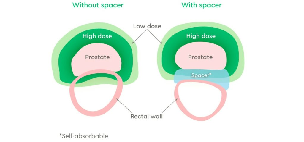 Prostate with or without spacer insertion
