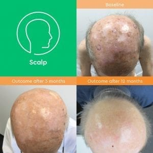 Cosmetic outcomes scalp